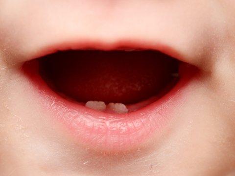 赤ちゃん 歯並び