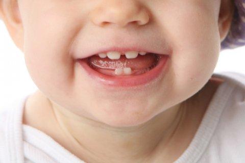 赤ちゃん すきっ歯