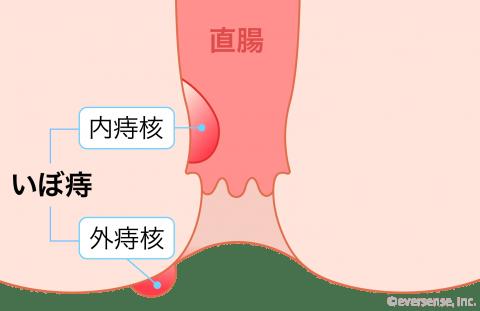 産後の痔 いぼ痔