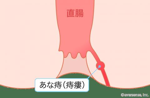 産後の痔 あな痔