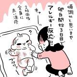 【ポッケ限定】食物アレルギーの話|ムチムチ!プニプニ!ちびたろ!#36